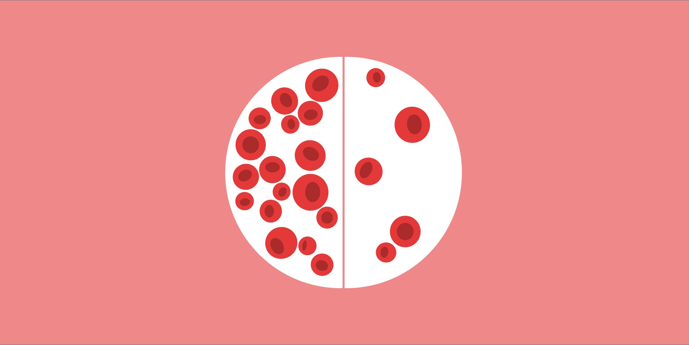 Анемия схематически